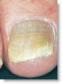cold laser toenail fungus removal